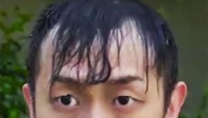 【激怒】薄毛男性が動画でブチギレ激怒「なぜ薄毛を笑うんだ? それで傷つかないと思ってるのか!!!!」