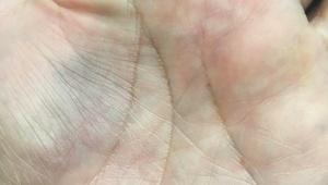 【悲報】立憲民主党・有田芳生さんが打撲 / 手のひらが青く変色する「これは地味に痛いはず」